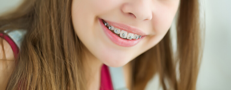 Close up of young girl's smile with braces