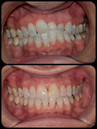 braces case 1-b